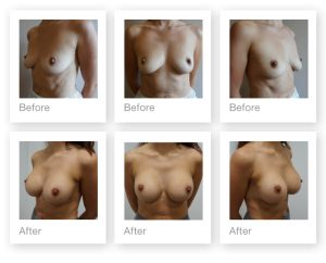 Chris Stone Exeter Cosmetic Surgeon Breast Augmentation surgery before & after January 2019