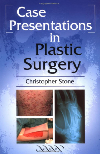 Case Presentations in Plastic Surgery Chris Stone Book