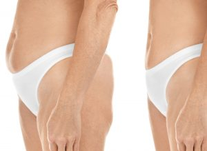 Exeter Abdominoplasty Surgery before after surgery patient results Chris Stone Exeter Cosmetic Surgery