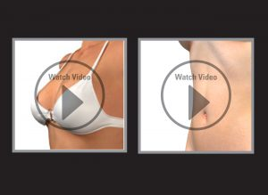 Exeter Cosmetic Surgery 3D animation videos Chris bStone Exeter Cosmetic Surgery