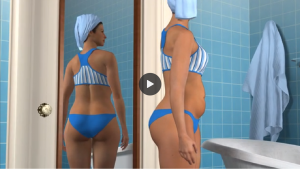 Exeter Cosmetic Surgery Liposuction 3D animation