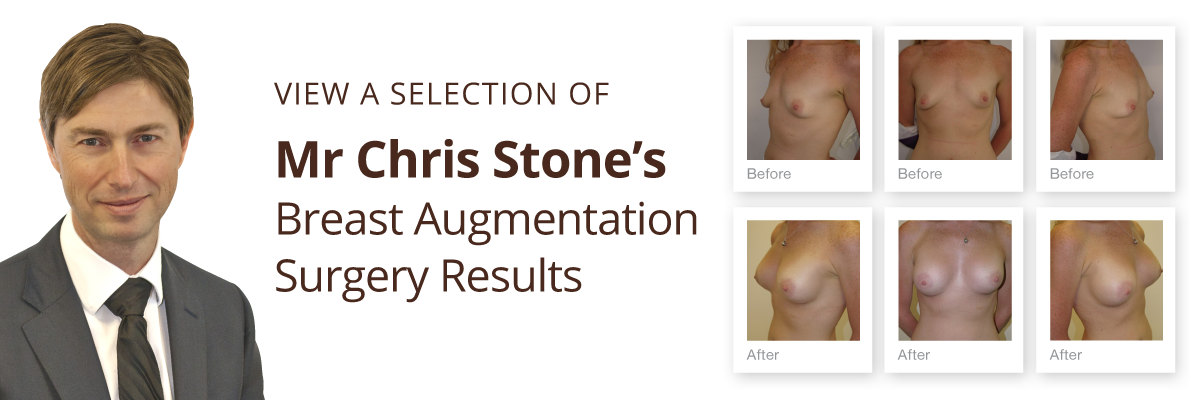 Exeter Cosmetic Surgery view breast augmentation before & after results by Mr Chris Stone