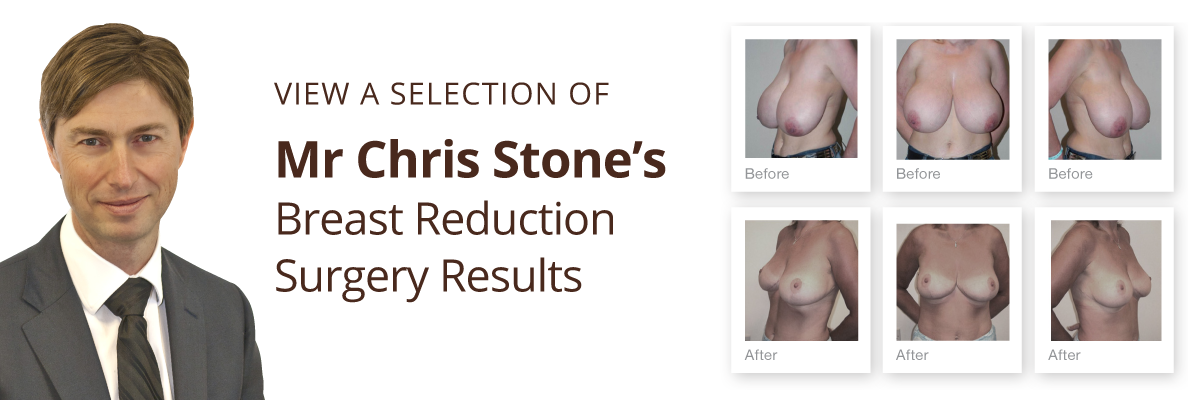 Exeter Cosmetic Surgery view breast reduction before & after results by Mr Chris Stone