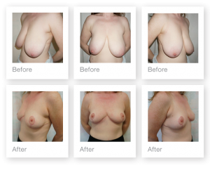 Chris Stone Breast Reduction surgery before & after June 2019