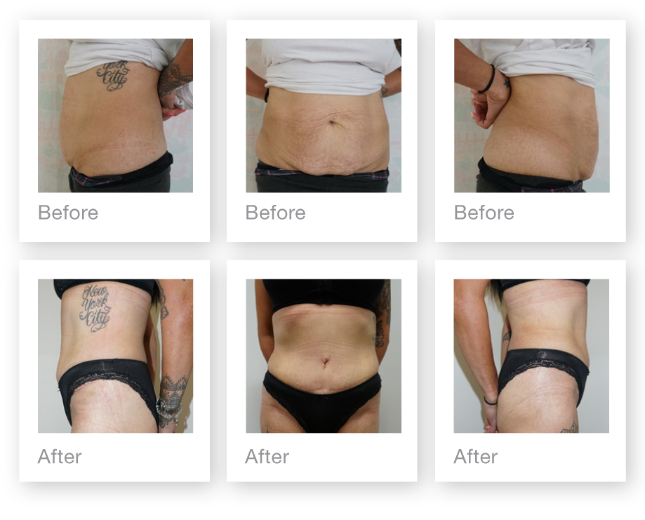 Chris Stone Cosmetic Surgeon Exeter abdominoplasty surgery before & after August 2019