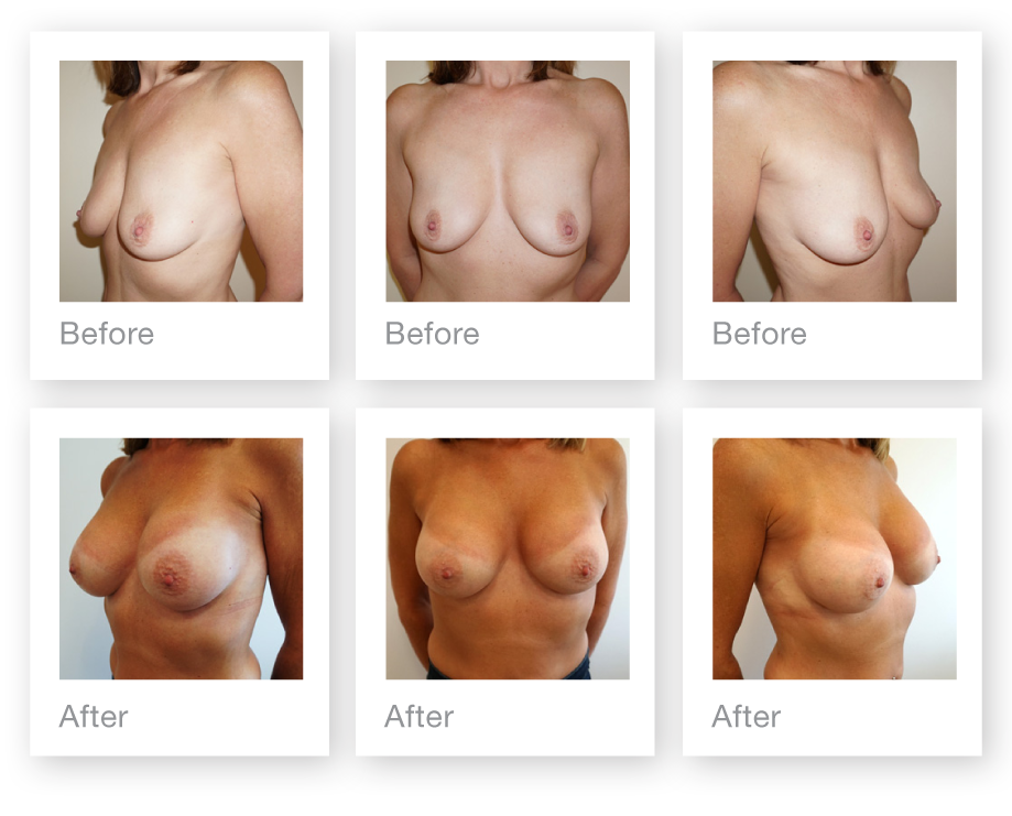 Chris Stone Exeter Cosmetic Surgeon Breast Augmentation surgery before & after August 2019