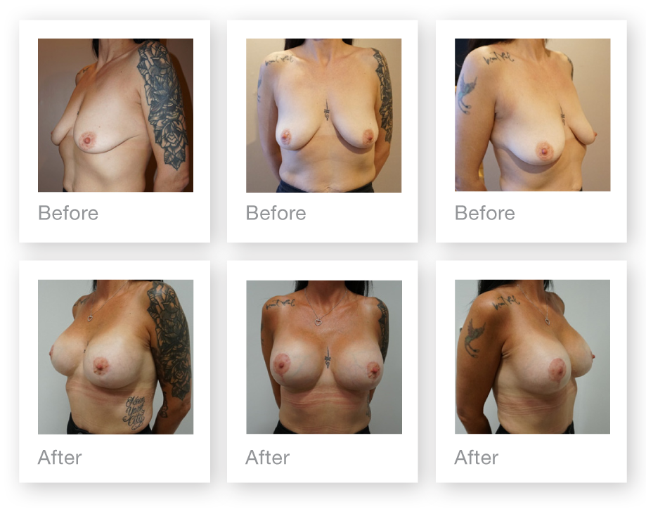 Chris Stone Breast uplift Mastopexy Augmentation surgery before & after August 2019