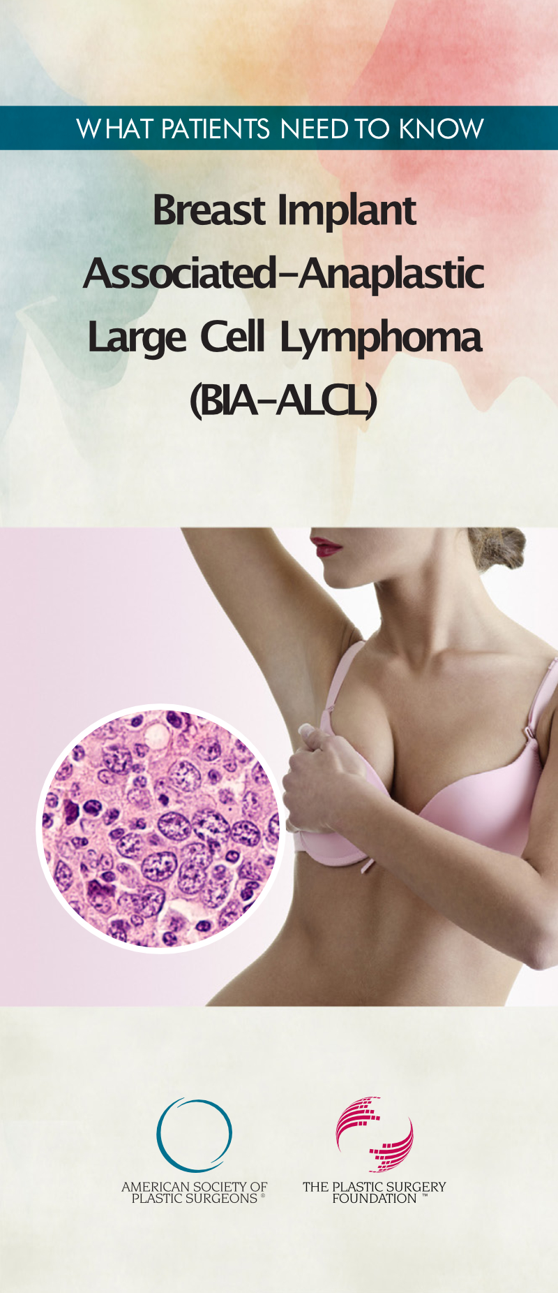 What Patients Need To Know - Breast Implant Associated-Anaplastic Large Cell Lymphoma (BIA-ALCL) DL Leaflet