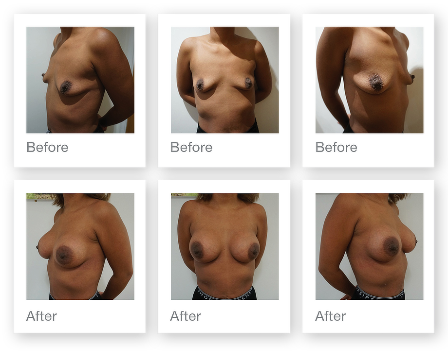 Chris Stone Breast Augmentation surgery before & after December 2019