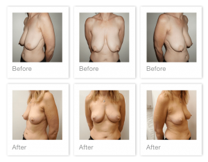 Chris Stone Exeter Breast Reduction surgery before & after Feb 2020