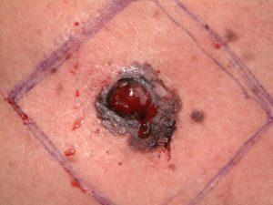 Nodular malignant melanoma - Cosmetic Surgeon Christopher Stone