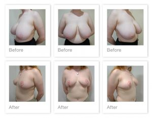 Chris Stone Breast Reduction surgery before & after Aug 2020